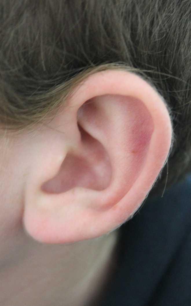 Ear ear