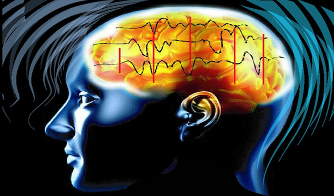 This Tech Can Decode Brain Accurately