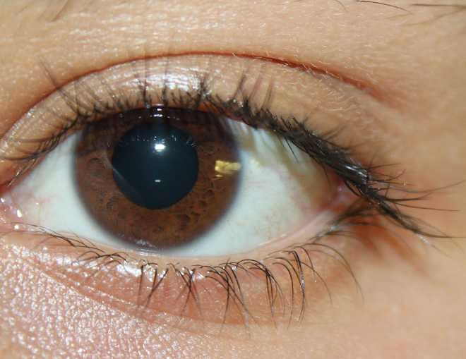 Does Your Eye Colour Matter?