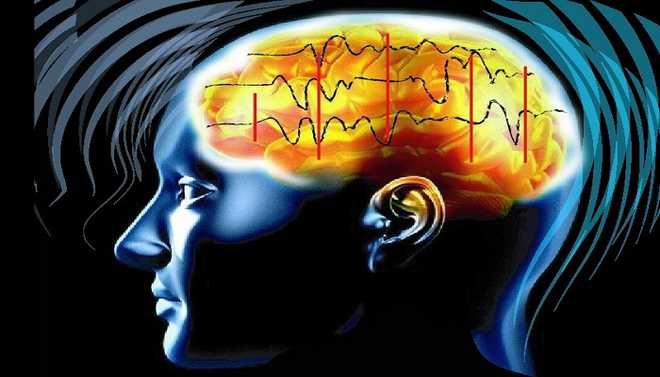 Internet May Alter Brain Functions